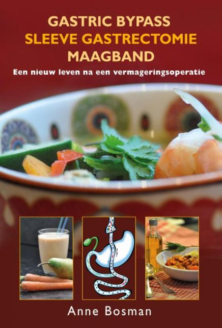 Gastric-bypass---Sleeve-gastrectomie---maagband